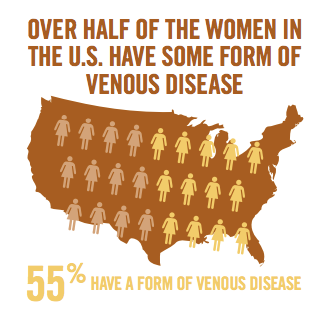 Women & Veins: Why Gender is a Risk Factor for Venous Disease